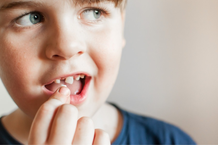 A boy with gaps in his smile is looking sideways and holding up a missing tooth.